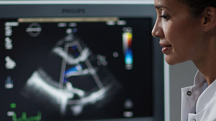 Seamless integrated cardiology solutions | Philips Healthcare
