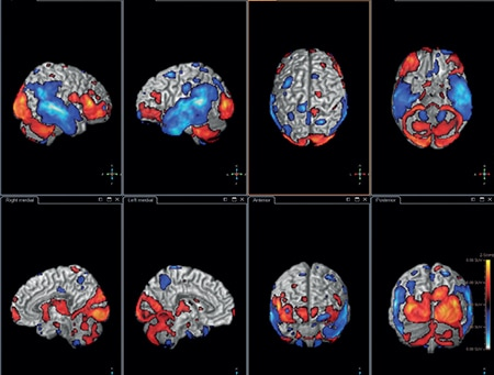 Surface projection of areas with hypo and hyper-metabolism on a MR template of the brain