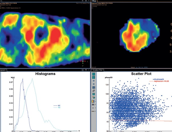 Statistical analysis of the parameter results (scatter plot and histogram)