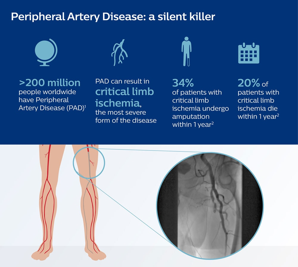 Peripheral Artery Disease Infographic