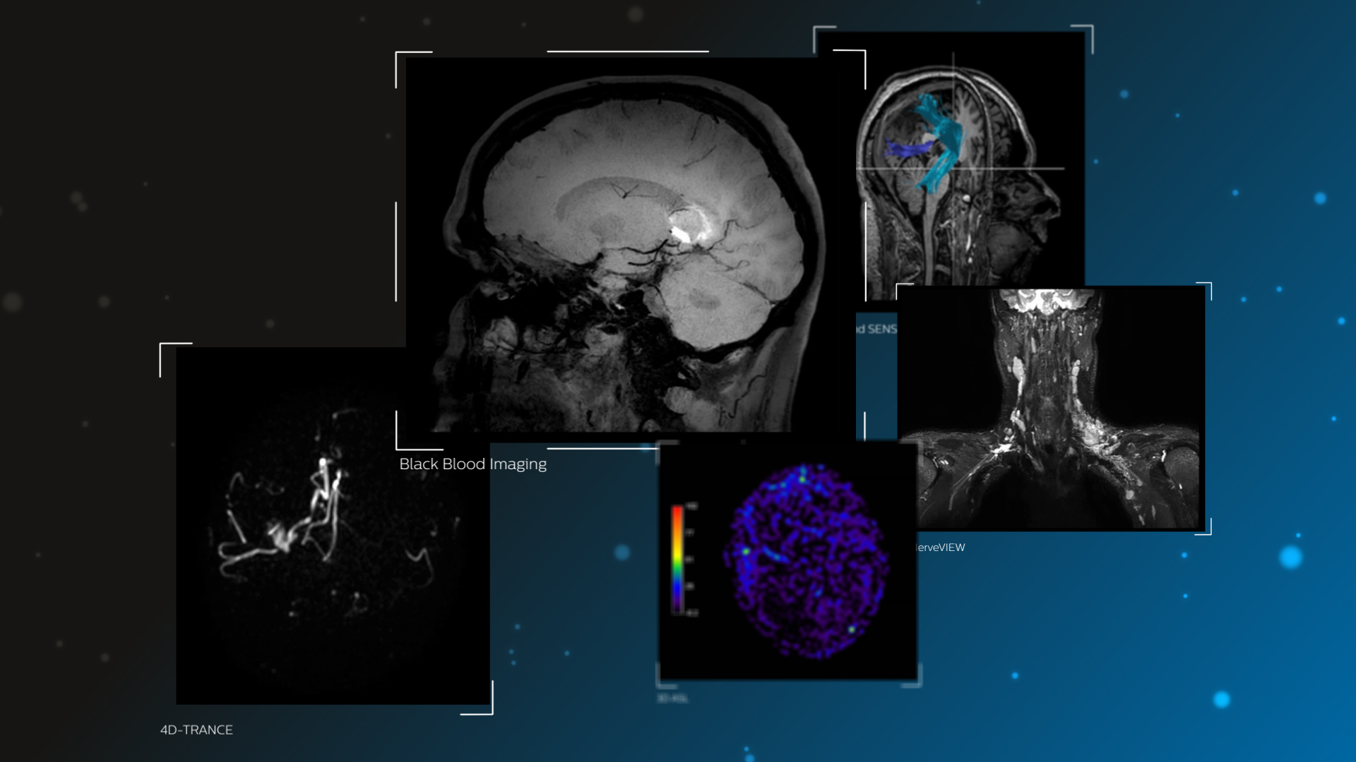 Philips to unveil suite of advanced MR-based software applications ...