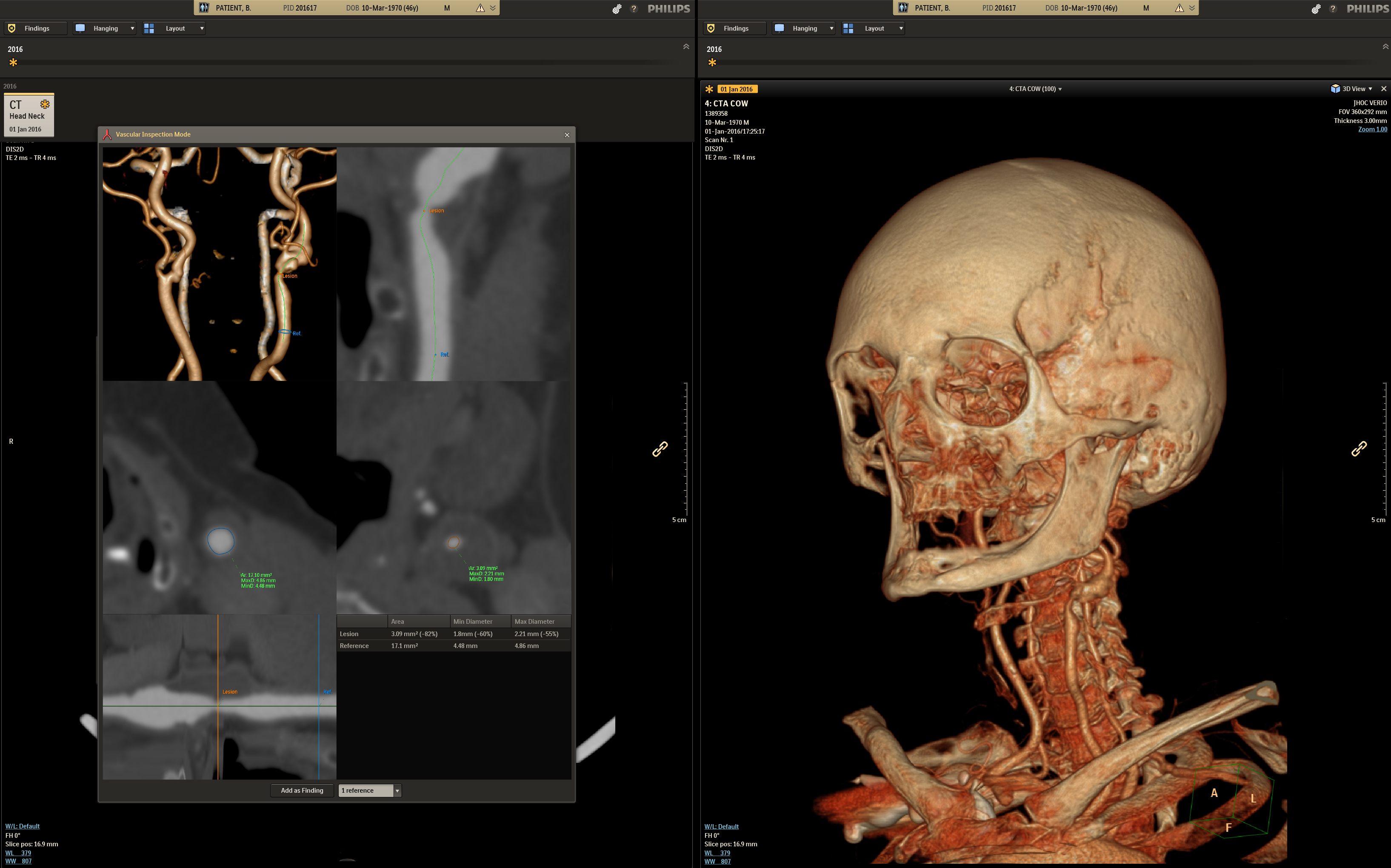Philips Is First To Bring Adaptive Intelligence To Radiology