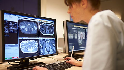 Philips showcases radiation oncology innovations at ESTRO 36, to enhance precision and reduce time to treatment, from imaging to planning
