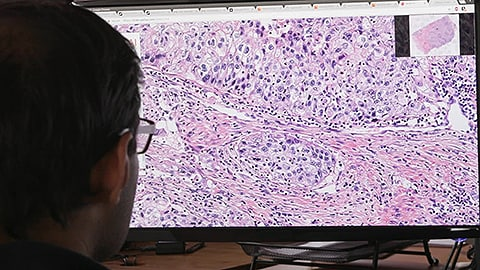 Philips and PathAI team up to improve breast cancer diagnosis using artificial intelligence technology in 'big data' pathology research