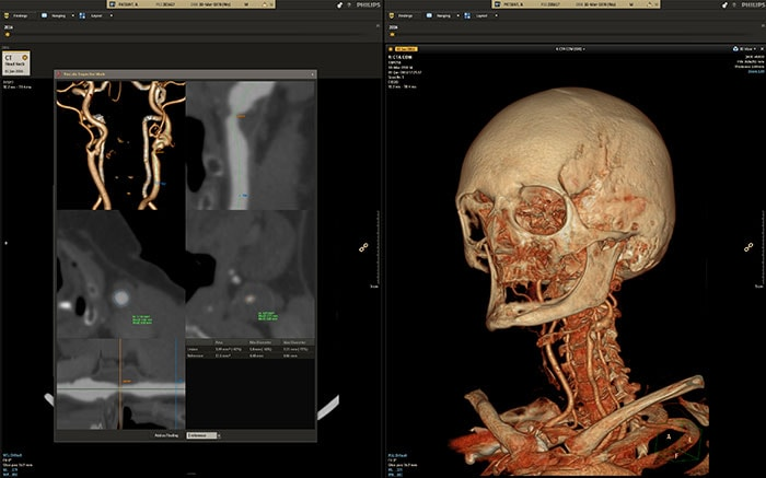 Philips Illumeo combines contextual awareness capabilities with advanced data analytics to augment the work of the radiologist