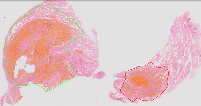 Download image (.jpg) Philips IntelliSite Pathology Solution for clinical use (opens in a new window)