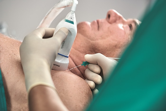 Download image (.jpg) Philips B. Braun Onvision Xperius regional anesthesia needle placement (opens in a new window)