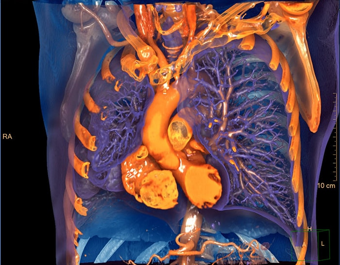Download image (.jpg) : IntelliSpace Portal 12 Photorealistic Chest 3D Image