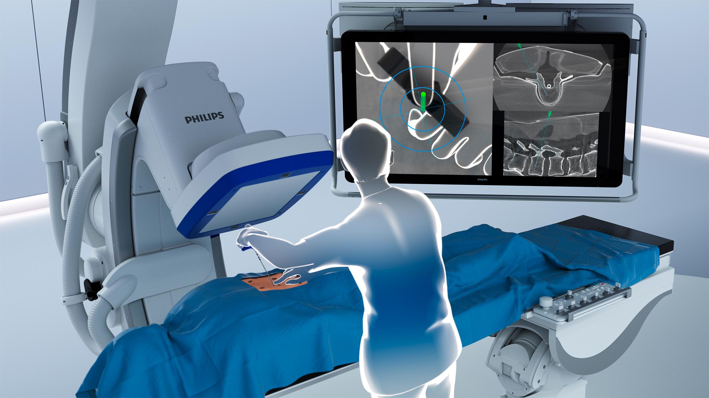 術中3Dナビゲーションシステム市場