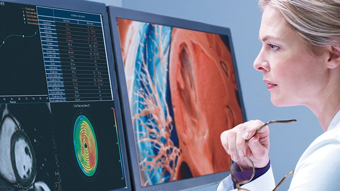Philips' spotlight solutions as part of the ECR 2021 Virtual Experience