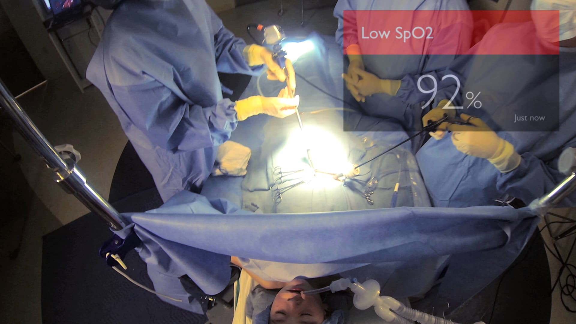View of vital signs during surgery 2